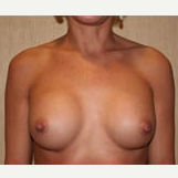 25-34 year old woman treated with Breast Implants after 3303904