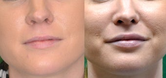 Restylane Filler in Lips before 1306453