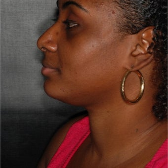 25-34 year old woman treated with Chin Liposuction 1941852