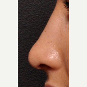 Close Up Detail of Rhinoplasty Result after 2993911