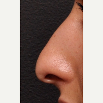 Close Up Detail of Rhinoplasty Result before 2993911