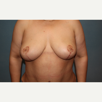 55 year old treated with breast lift after 3325996