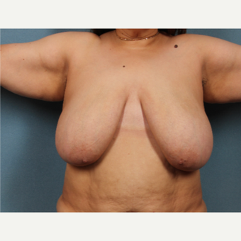55 year old treated with breast lift before 3325996