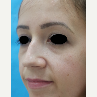 25-34 year old woman treated with Rhinoplasty before 3642931