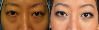 Before and After Bilateral Lower Blepharoplasty Surgery before 1017582