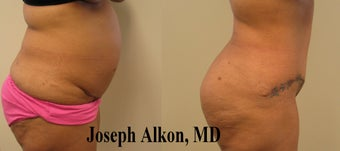 Revision Tummy Tuck