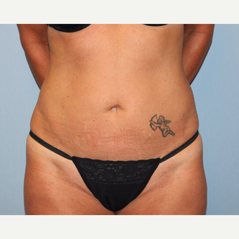 35-44 year old woman treated with Tummy Tuck before 3815697