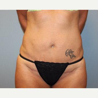35-44 year old woman treated with Tummy Tuck after 3815697