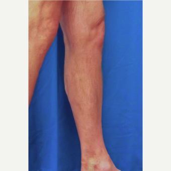 55-64 year old man treated with Vein Treatment after 3093071