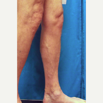 55-64 year old man treated with Vein Treatment before 3093071