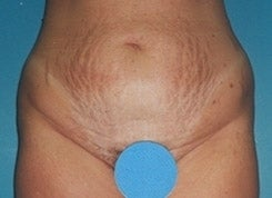 Tummy Tuck before 1663515