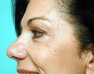 Botox for Crow's feet after 968633