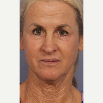 55-64 year old woman treated with Laser Resurfacing after 3658588