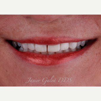 Severely restored teeth treated with Emax Crowns, Veneers and Smile Makeover after 3120107