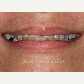 Severely restored teeth treated with Emax Crowns, Veneers and Smile Makeover before 3120107