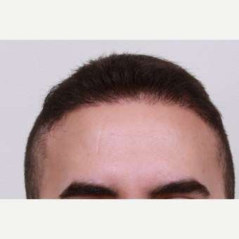 25-34 year old man treated with FUE Hair Transplant after 2817801