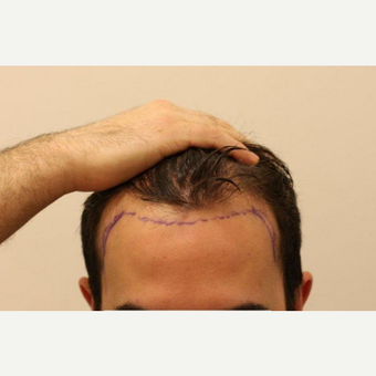 25-34 year old man treated with FUE Hair Transplant before 2817801