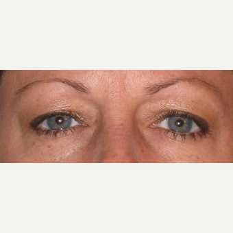 Before and after upper blepharoplasty before 3587961