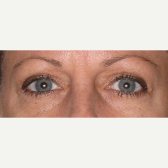 Before and after upper blepharoplasty after 3587961