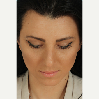 25-34 year old woman treated with Rhinoplasty before 3628759