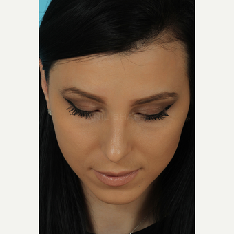 25-34 year old woman treated with Rhinoplasty after 3628759