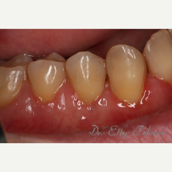 25-34 year old woman treated with Gum Graft after 2834773