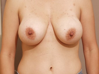 Breast lift with implants before 1262904