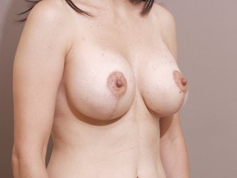 Breast lift with implants 1262904