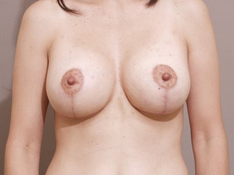 Breast lift with implants after 1262904