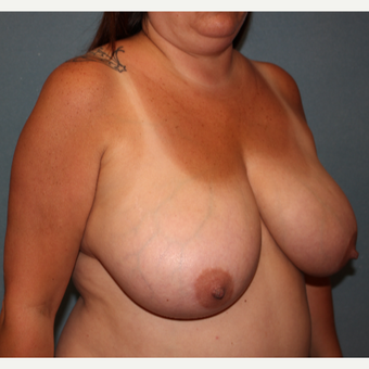 45-54 year old woman treated with Breast Lift before 3213862