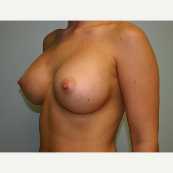 Breast Augmentation after 3444176