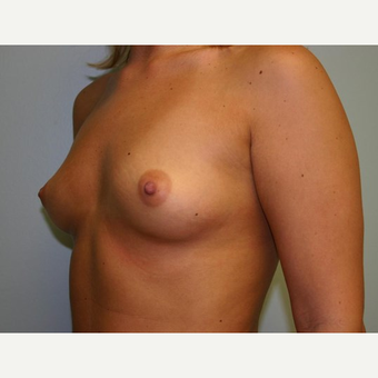 Breast Augmentation before 3444176