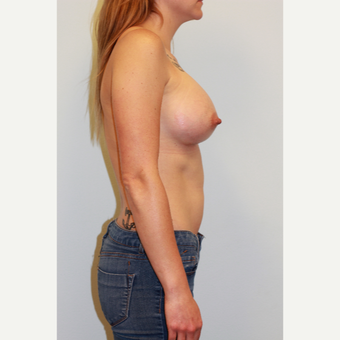 25-34 year old woman treated with Breast Augmentation after 3027256