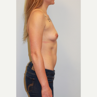 25-34 year old woman treated with Breast Augmentation before 3027256