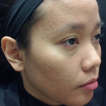 25-34 year old woman treated with Microneedling after 3844400