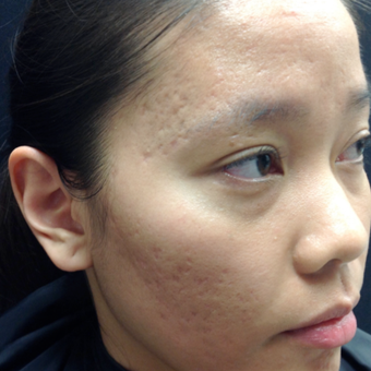 25-34 year old woman treated with Microneedling before 3844400