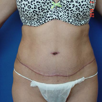 25-34 year old woman treated with Tummy Tuck after 3287518