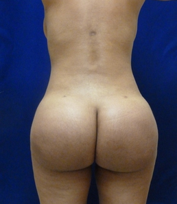 Butt Augmentation after 957099