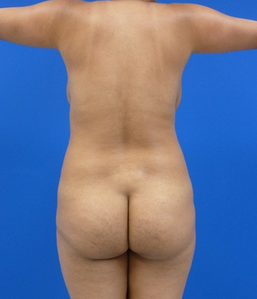 Butt Augmentation before 957099