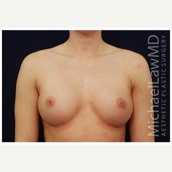 25-34 year old woman treated with Inspira Breast Implants after 1862152