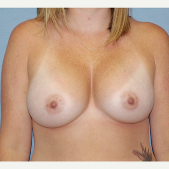 25-34 year old woman treated with Breast Augmentation after 3124596