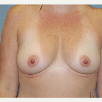 25-34 year old woman treated with Breast Augmentation before 3124596