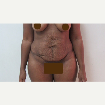 35-44 year old woman treated with Tummy Tuck before 2815095