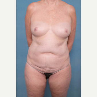55-64 year old woman treated with Mommy Makeover before 3137315