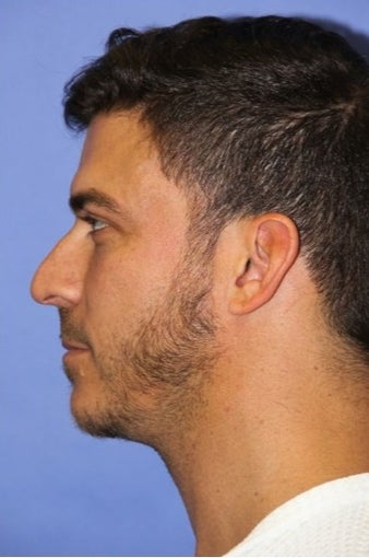 25-34 year old man treated with Rhinoplasty before 1690746