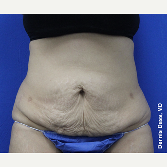 35-44 year old woman treated with Tummy Tuck before 3679788