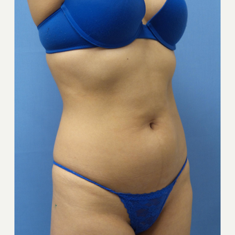 18-24 year old woman treated with Liposuction before 3378363