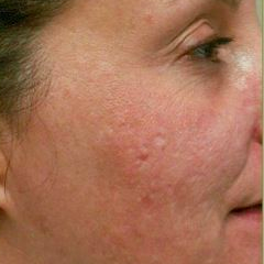 Woman treated with Acne Scars Treatment after 1585411