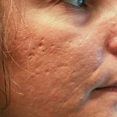Woman treated with Acne Scars Treatment before 1585411