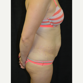 35-44 year old woman treated with Tummy Tuck before 3181691